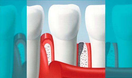 Curso de Especialização em Prótese Dental - Histologia do Periodonto