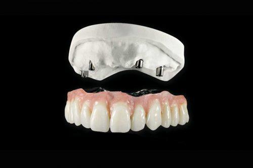 Curso de Especialização em Prótese Dental - Prótese Sobre Implantes