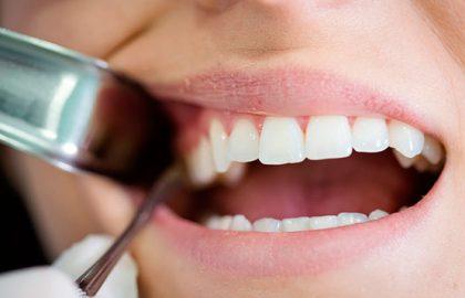 Curso de Especialização em Prótese Dental - Cirurgias Finalidade Protética