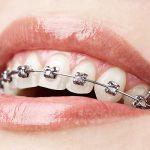 Ortodontia aplicada a Prótese
