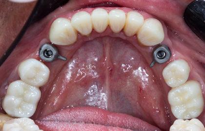 conteúdo programático prótese sobre implantes